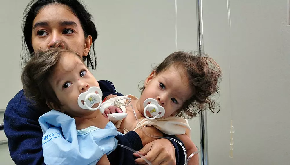 20 Extraordinary And Eye-Opening Facts About Conjoined